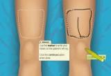 لعبة اجراء عملية جراحية لقدم الرجل