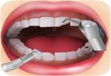 العاب جراحة الاسنان المتسوسة